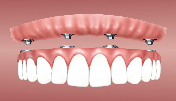 clinica-dentara-din-Bucuresti