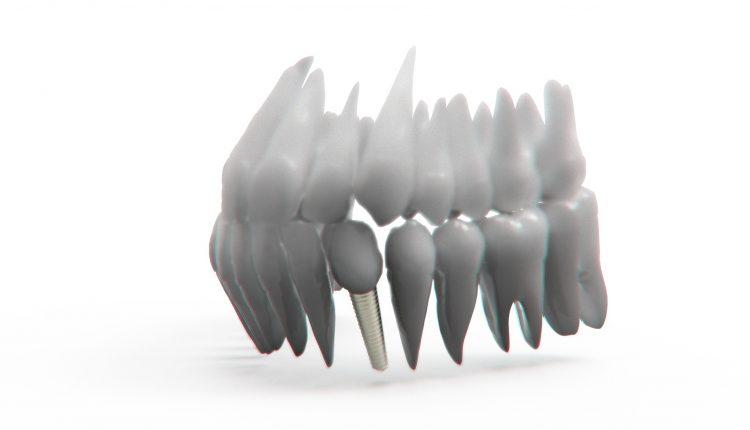 proteze-pe-implanturi
